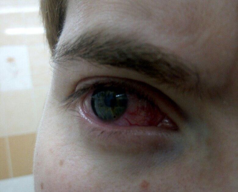 Окалина попала в глаз её не видно глаз красный