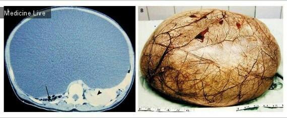 Гигантская киста яичников Медицина, Фотография, Киста
