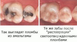 Сколько держится временная пломба в зубе