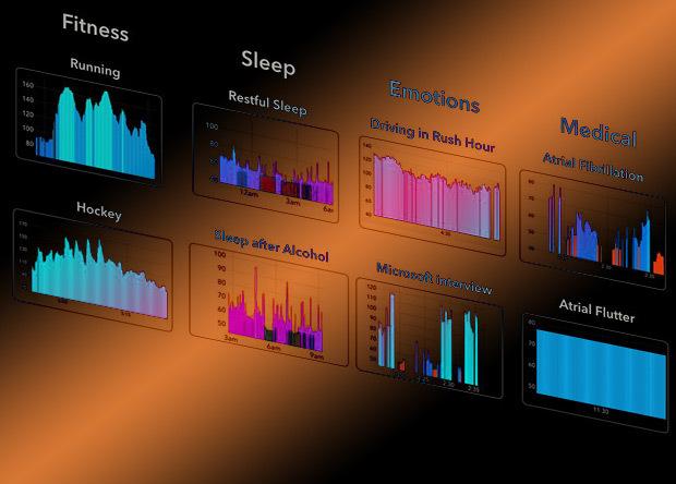 Нейросеть научилась предсказывать диабет по данным умных часов наука, новости, Медицина, нейронные сети, пульс, диагностика, IT