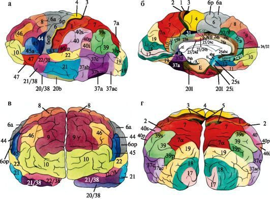 Инсульты. Вводный пост – как работает неврология. Медицина, Неврология, Инсульт, Длиннопост