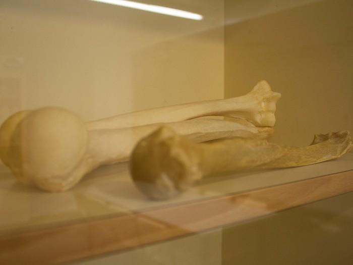 Доза в 9,5 грэя: кости жертв Хиросимы Наука, Исследование, Физика, Хиросима, Бомбардировка, Радиация