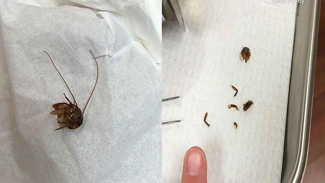 Женщина во Флориде проснулась с тараканом в ухе. Насекомые, Новости, Жесть, Уши, Флорида