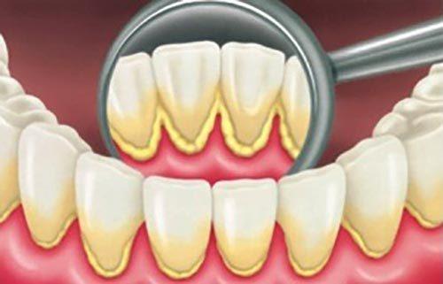 Байки стоматолога №1. Самая большая боль, которую я причинял. Медицина, стоматология, мои байки, лечение, ужасы, боль, зубы, длиннопост, жесть