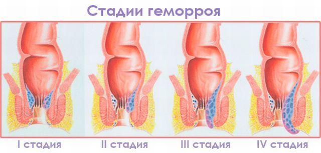 uvelichit-zadniy-prohod-pristavanie-v-transporte-v-yaponii-smotret-onlayn