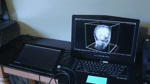 Использование планшета и акселерометра для просмотра скана МРТ