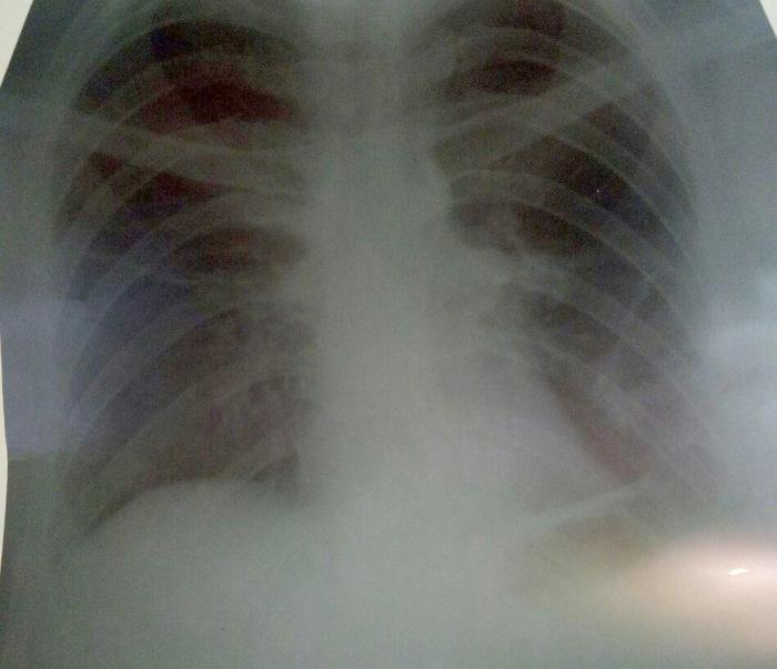 Эхинококк в легких (как прийти в поликлинику с кашлем и уйти на операцию) Эхинококк, Длиннопост, Медицина, Операция, Легкие, Пациент, Хирургия, Киста