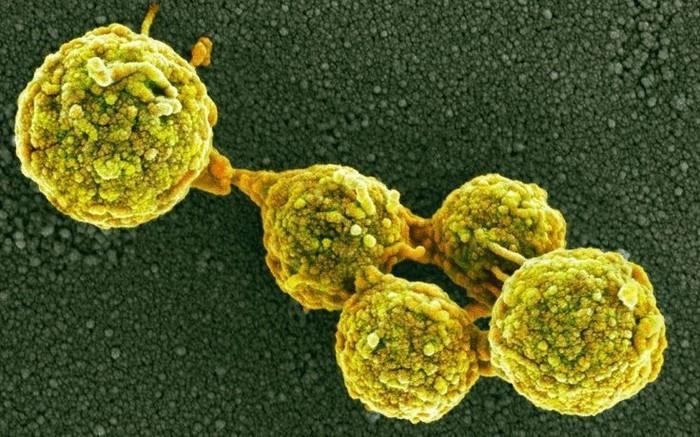 Увы, такова горькая правда: нас едят грибы Длиннопост, Трихоманада, Здоровье, Микробиология, Рак, Плесень, Грибок