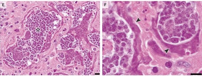 Злокачественная трансформация карликового цепня Паразиты, Карликовый цепень, Hymenolepis nana, Медицина, ВИЧ, Опухоль