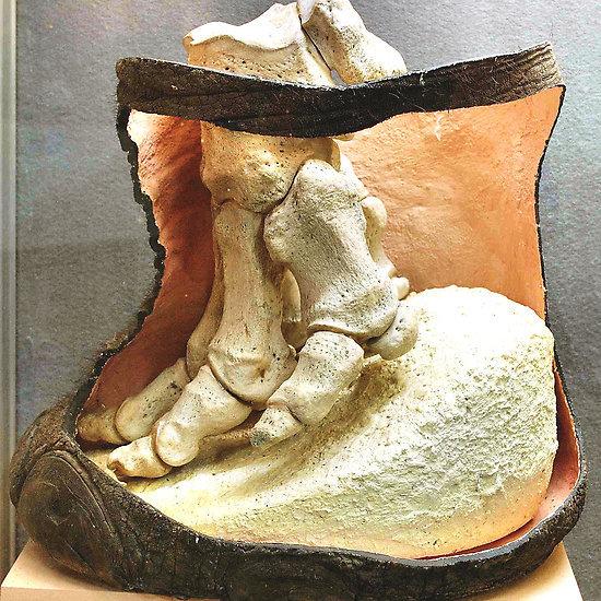 Слоновья нога Анатомия животных, Слоны