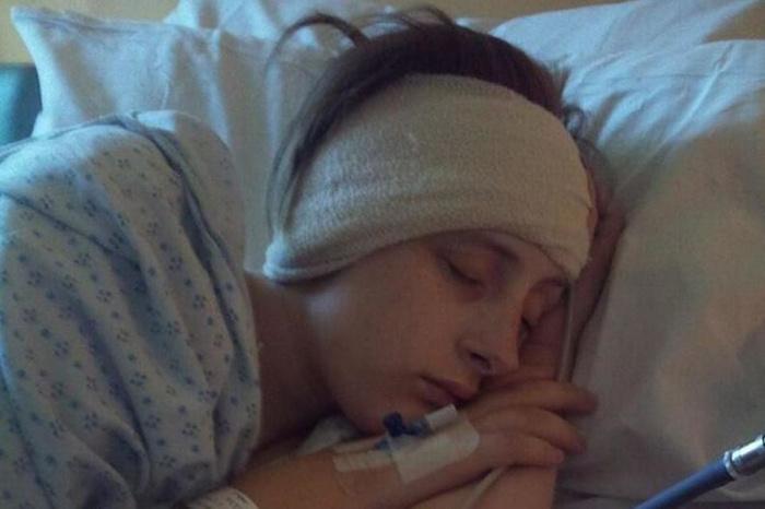 24-летняя девушка два года чувствовала себя пьяной из-за передавленного мозжечка Диагноз, Врачи, Здоровье, Длиннопост