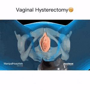 Вагинальная экстерпация матки