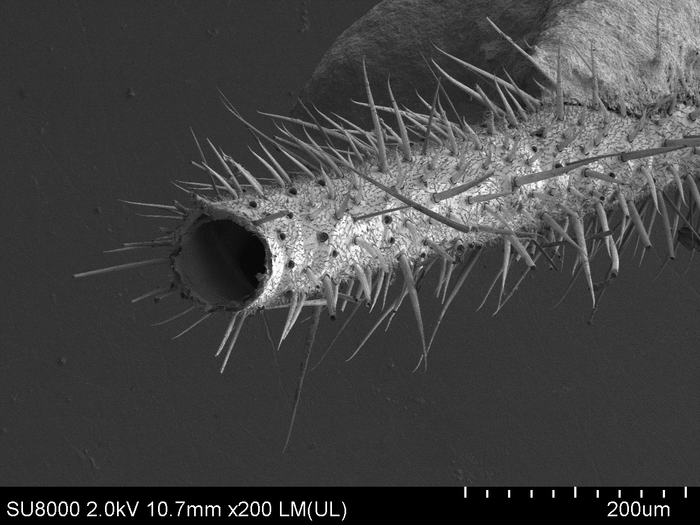 zhopa-pod-mikroskopom