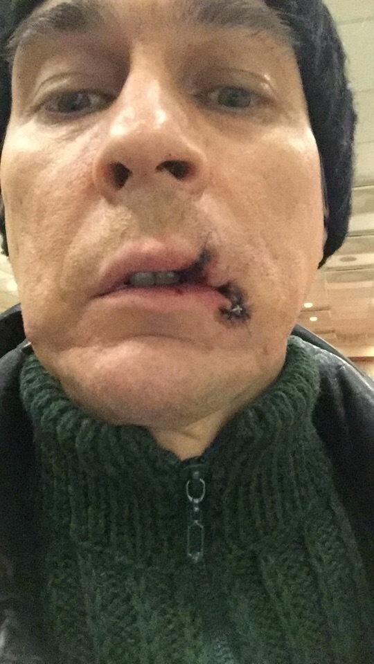 В екатеринбургском Оперном театре солист порвал рот во время спектакля Театр, Курьез, Травма, Длиннопост