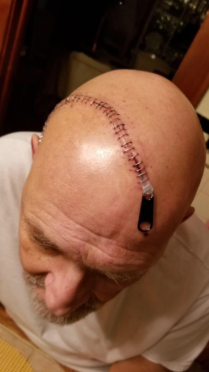 Перенесший операцию на черепе решил немного пошутить