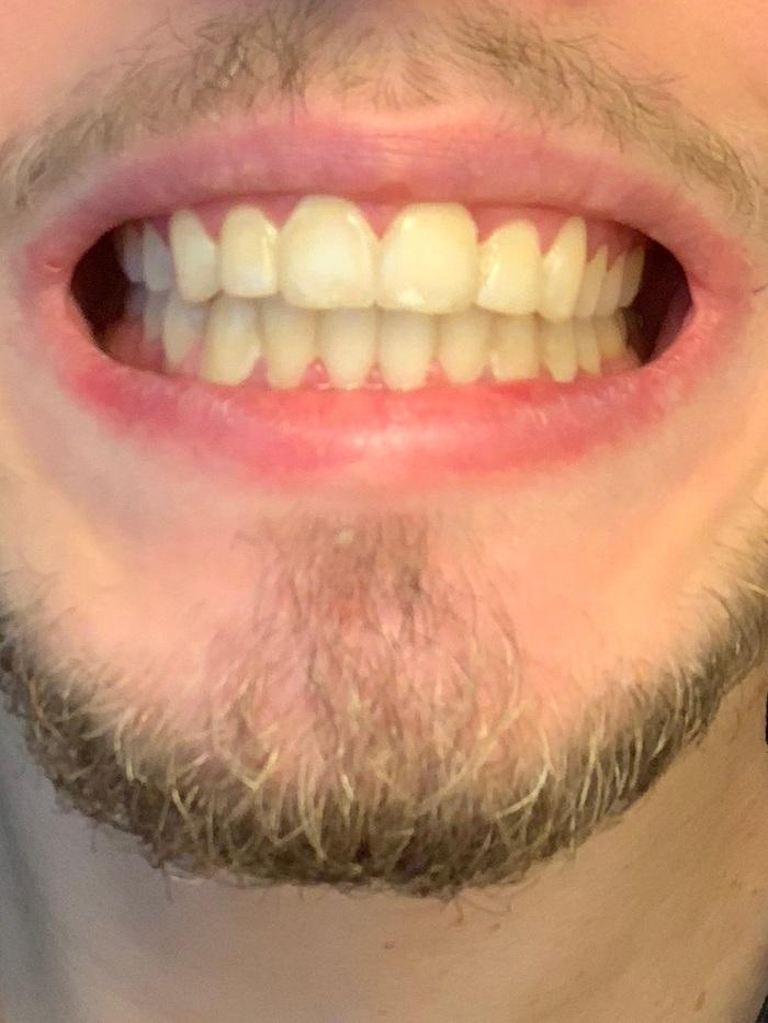 Моя история с брекетами, 1 год и 10 месяцев Брекеты, Комплексы, Зубы, Прогресс, Результат, Длиннопост