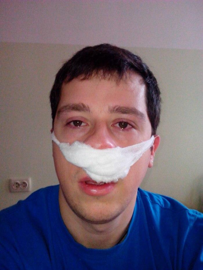Как мне нос выравнивали и почему я бы сделал это ещё раз Операция, Боль, Нос, Хирургия, Длиннопост