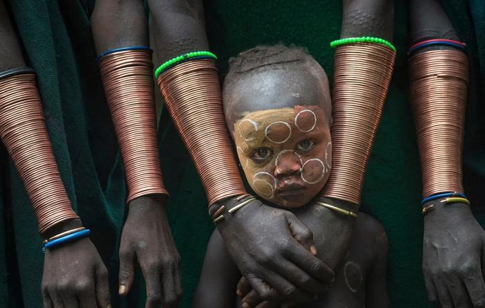 Твое лицо, когда тебе ставил банки пьяный батя. Юмор, Африка, Фотография, Медицинские банки