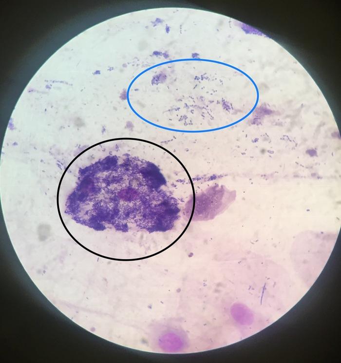 Лабораторная диагностика. Микроскопия Лабораторная диагностика, Лаборатория, Микроскоп, Микроскопия, Длиннопост, Анализ