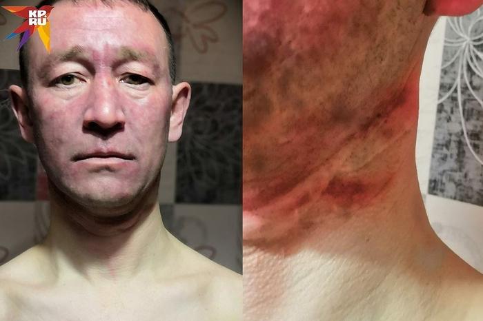 """""""Задушенный"""" таксист ожил в багажнике и вызвал полицию Карасук, Таксист, Негатив, Удушение, Бандитизм, Такси, Нападение"""