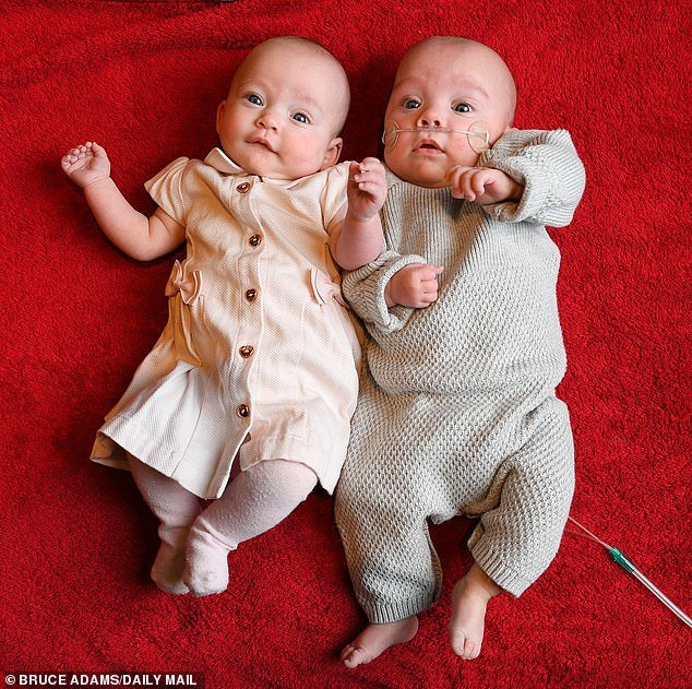 Женщина родила двойняшек с разницей в 12 дней Двойняшки, Медицина, Рекорд, Длиннопост