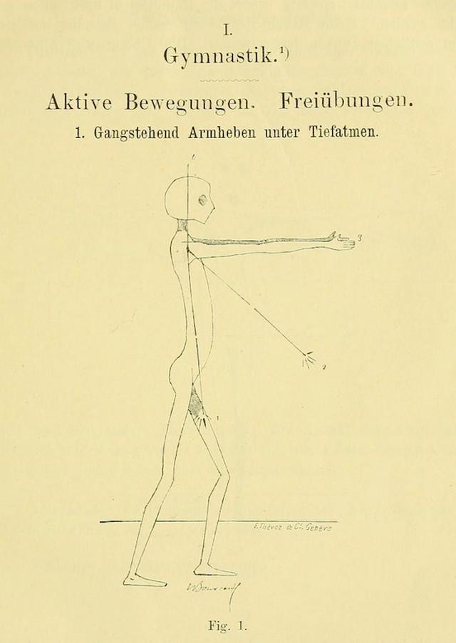 Гинекологическая гимнастика с гуманоидными пришельцами из книги 1895 года Длиннопост, Гинекология, Гимнастика, Интимная гимнастика, Гуманоид, Пришельцы