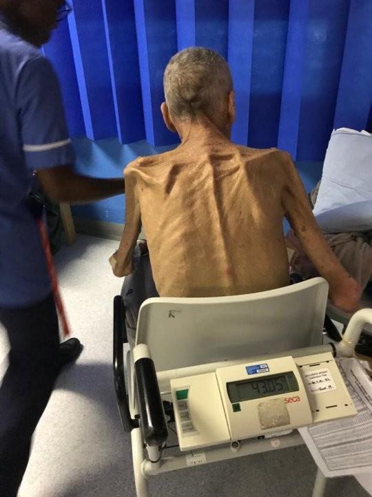64-летний больной старик весил 38 кг, но соцслужбы сочли, что он должен работать Рабочие, Здоровье, Суд, Длиннопост