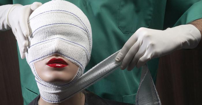 Эстетическая хирургия. Блефаропластика верхних век Пластическая хирургия, Пластическая операция, Пластика лица, Красота, Медицина, Платная медицина, Длиннопост