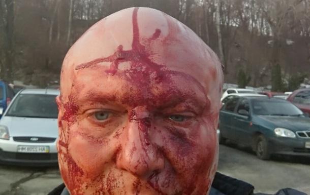 Зоозащитникипроломили голову догхантеру. Зоозащитники, Догхантер, Самосуд, Жесть