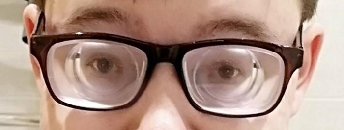 Как же и что же я вижуP. S. Внизу прикрепил фоточку глаз с такими очками Очки, Близорукость, Диоптрии, Плохое зрение