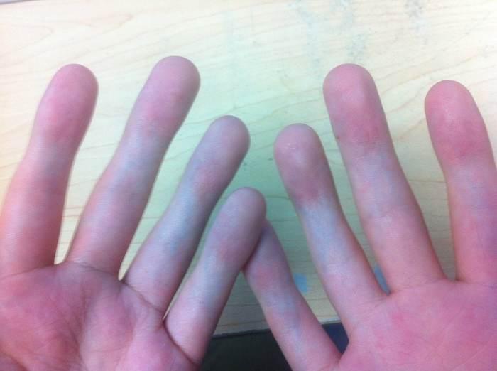 У парня в сети спросили, как он сделал фото своих рук. Он показал, но вопросов стало только больше. Reddit, Руки, Болезнь, Юмор, Перевод, Длиннопост, Фотограф