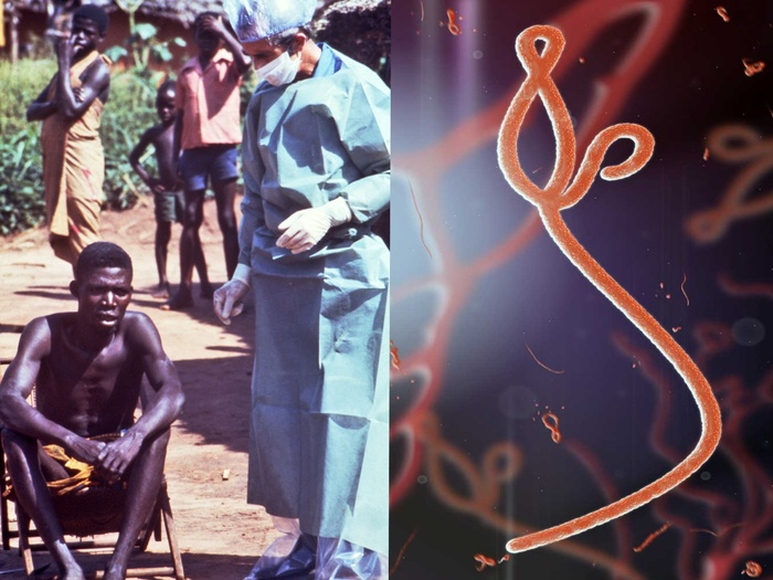 Ключи от шкатулки Пандоры: нулевой пациент Эболы. Эбола, Марбург, История, История медицины, Медицина, Болезнь, Эпидемии, Scientaevulgaris, Длиннопост