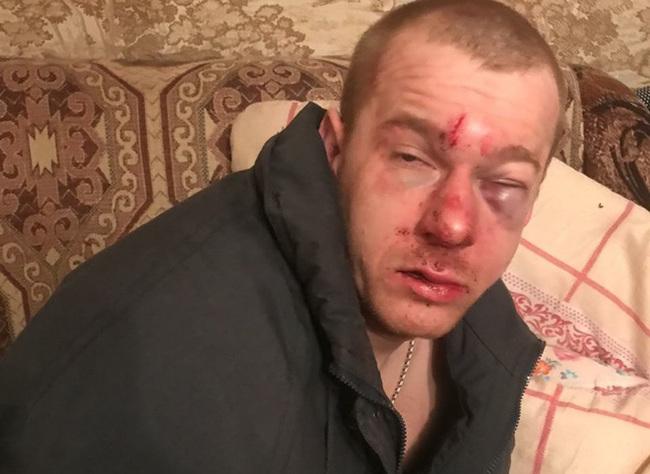 «Мы едем вас убивать». Полиция Новомичуринска тормозит дело об избиении рязанца Рязанская область, Гопники, 90-е, Беспредел, Длиннопост, Беззаконие, Негатив