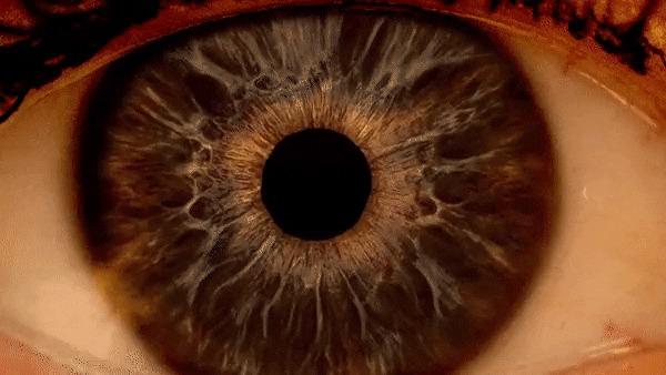 Как видит офтальмолог.