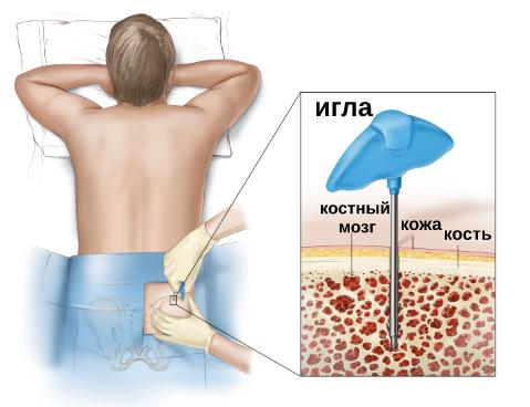 Про пересадку костного мозга Пересадка костного мозга, Стволовые клетки, Донорство, Длиннопост, Медицина, Трансплантация