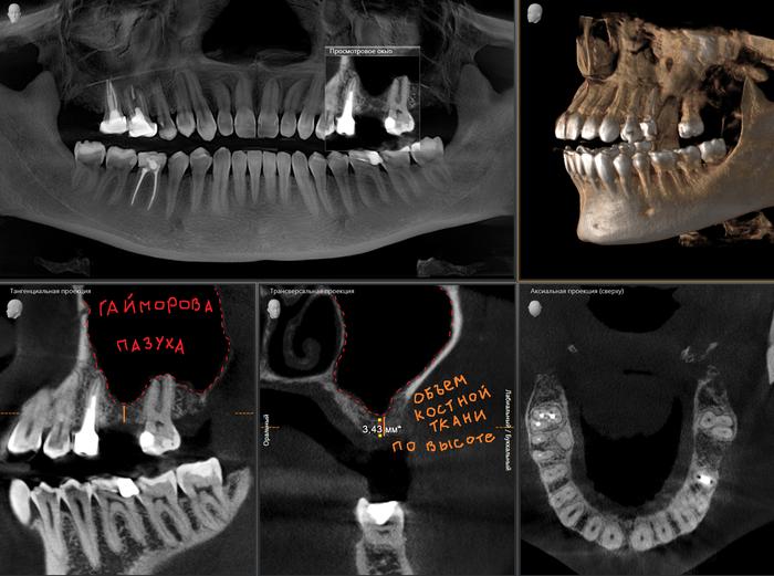 Синус-лифтинг и одномоментная имплантация. Стоматолог, Стоматология, Медицина, Врачи, Хирург, Хирургия, Имплантация, Зубы, Длиннопост