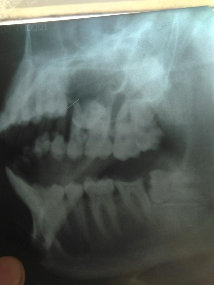 Зуб мудрости. Зубы, Зуб мудрости, Поганая восьмерка, Стоматология