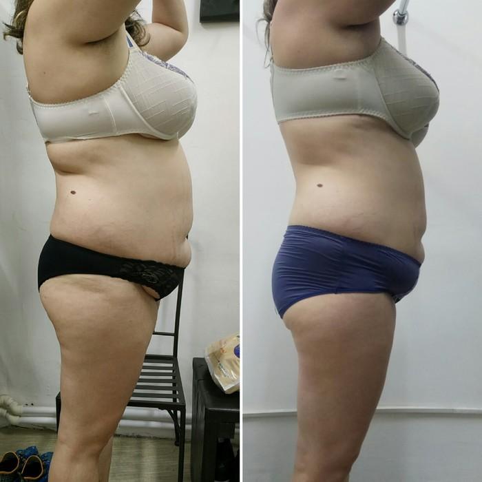 Похудение Похудение, До и после, Длиннопост