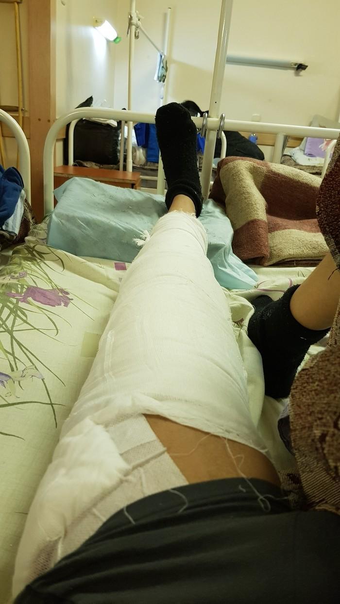 Угадайте кто наконец-то сегодня нормально поспит Аппарат илизарова, Левая нога, Длиннопост