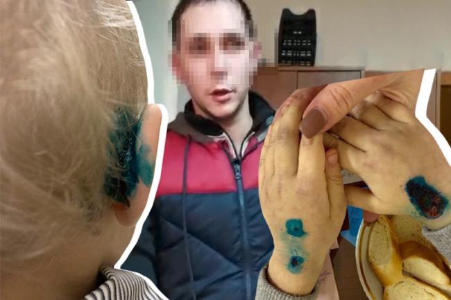 Порваны уши, сломаны ребра, отбита голова в Волгограде отчим и мать запытали шестилетнего мальчика