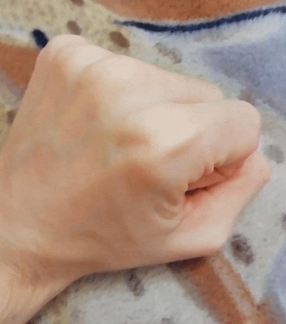 С моей рукой все ок? Рука, Сухожилие, Странности, Гифка