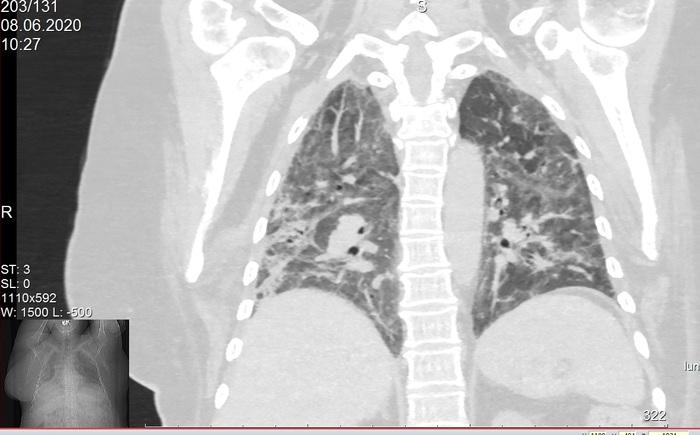 2 месяца работы с COVID-19: анализ данных Коронавирус, Медицина, Длиннопост