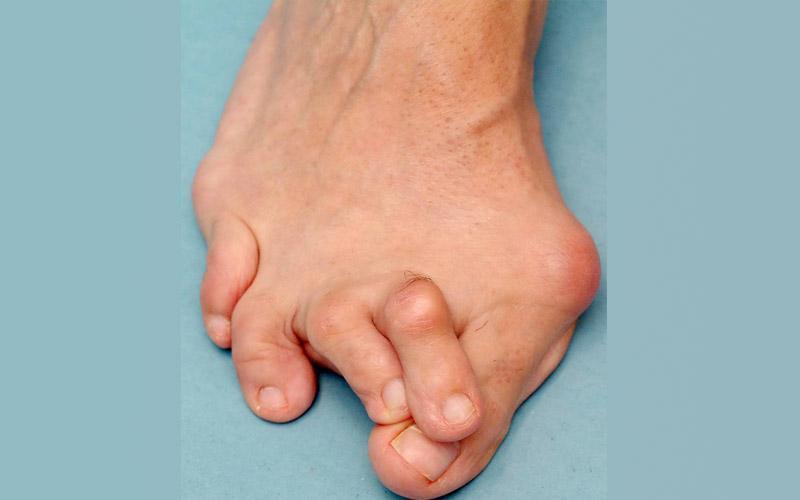быть правы. артрит шишка на ноге случай кризиса запася